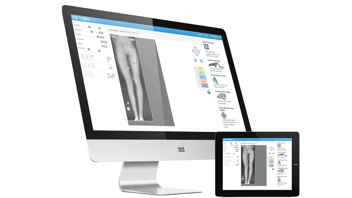 Click2correct response ortho llc for Orthopedic templating software